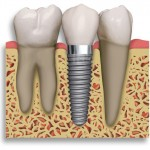 Dental implant sistemi.